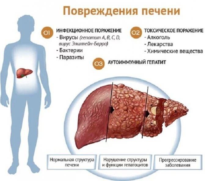 Цирроз печени может перейти в рак?
