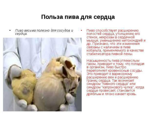 Синдром wpw | симптомы | диагностика | лечение - docdoc.ru
