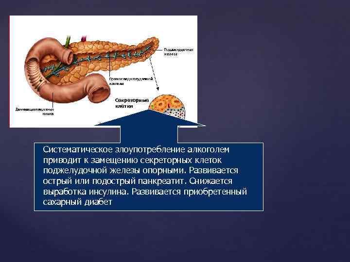 Алкоголь при заболеваниях поджелудочной железы: симптомы, влияние и восстановление