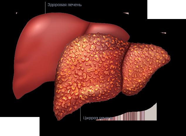 Цирроз печени — это рак или нет: чем отличаются заболевания, разница в симптомах