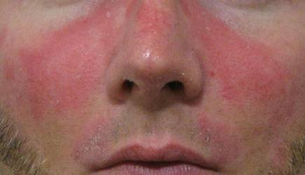 Появление красных пятен на лице после употребления алкоголя