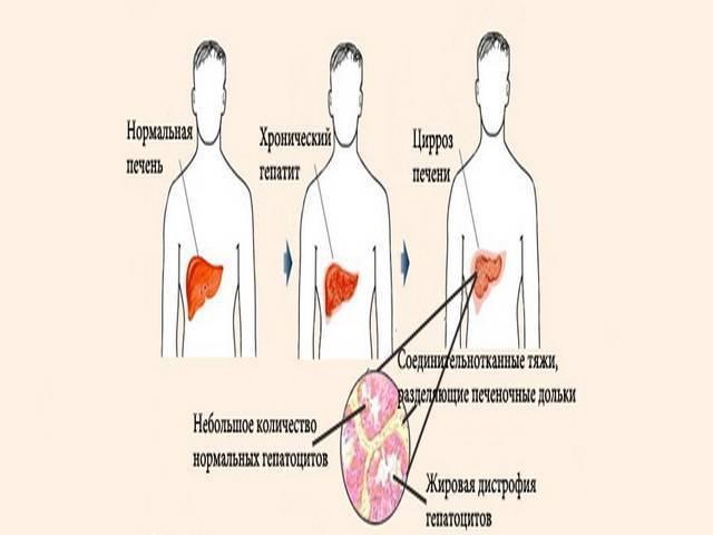 Алкогольная эпилепсия: симптомы приступа после алкоголя, лечение припадка в домашних условиях, последствия приобретенного недуга на фоне алкоголизма