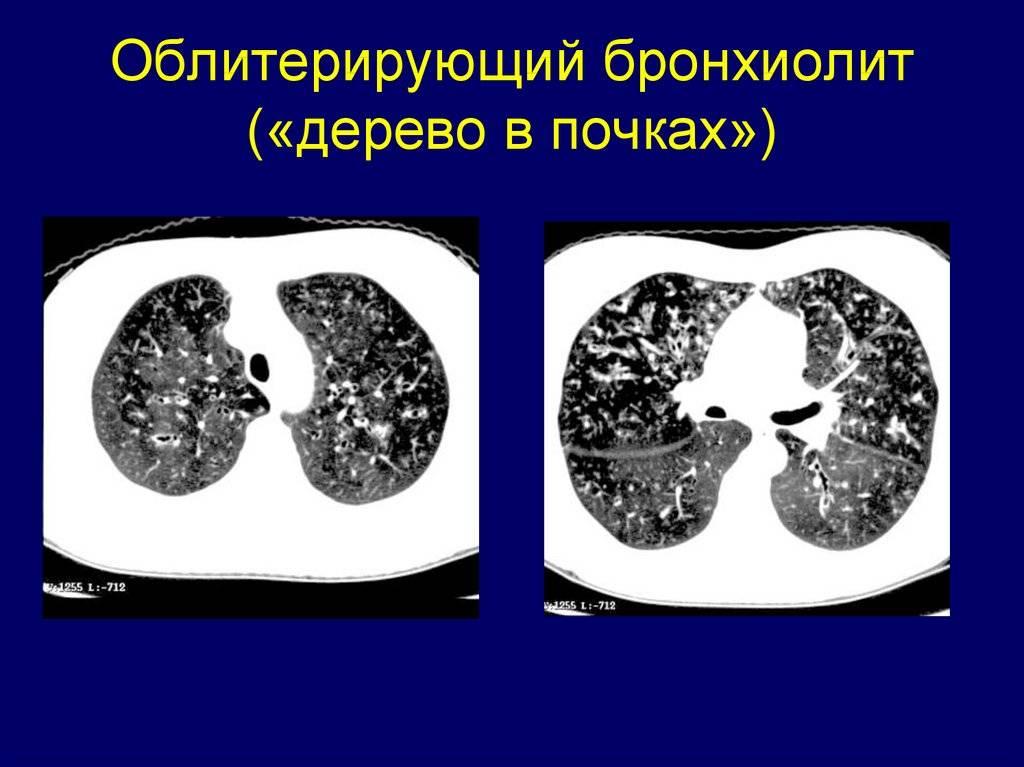 Бронхиолит у взрослых - одна из причин затяжного и хронического кашля | наш дом в новороссийске | яндекс дзен