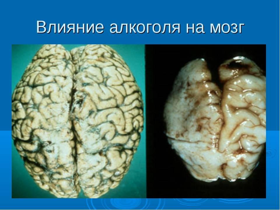 Научные факты о влиянии алкоголя на мозг человека — разрушает ли он нейроны и клетки?
