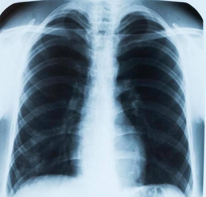 Здоровые лёгкие на рентгене