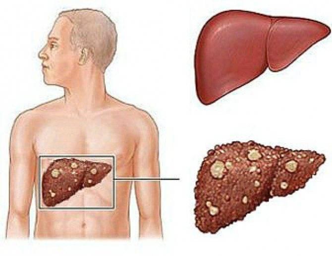 Цирроз рак печени - поликлиника