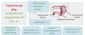 Сухость во рту - причины какой болезни? лечение и устранение сухости рта - полезные советы - 2020