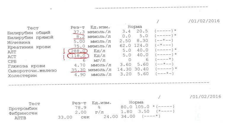 Анализ аст, анализ алт, печеночные пробы, биохимия крови, анализ билирубина при циррозе печени