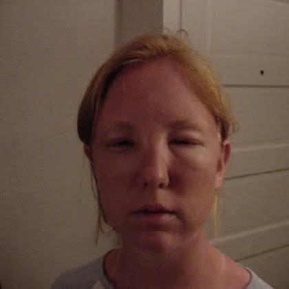 Как убрать опухоль с глаз после пьянки, отек с лица, мешки под глазами, быстро в домашних условиях