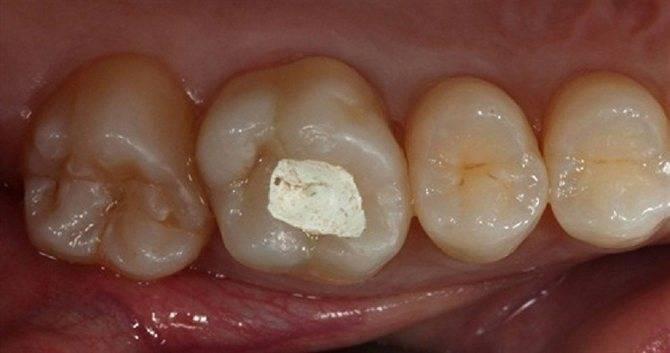 Через сколько можно курить после пломбирования зуба — зубы