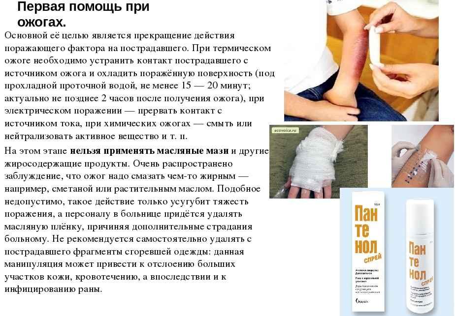 Ожог от сигареты на руке nk-podolog.ru