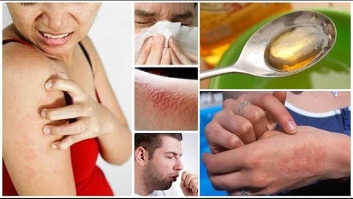 Зуд кожи тела при заболеваниях печени: особенности и лечение
