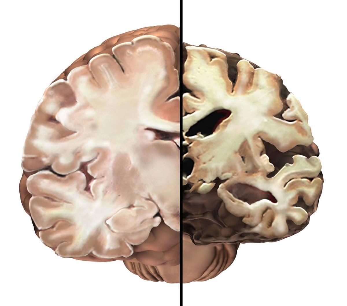 Сенильная дегенерация головного мозга как причина смерти - всё о неврологии