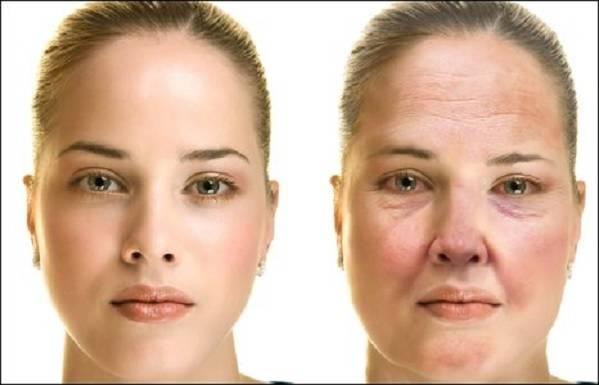 Аллергический отек лица: что делать, как снять, лечение