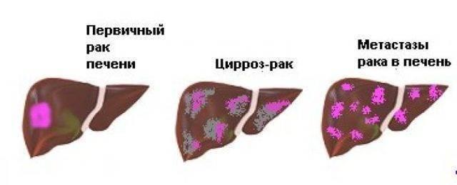 Цирроз печени и рак отличия.  цирроз печени. izlechisebya.ru
