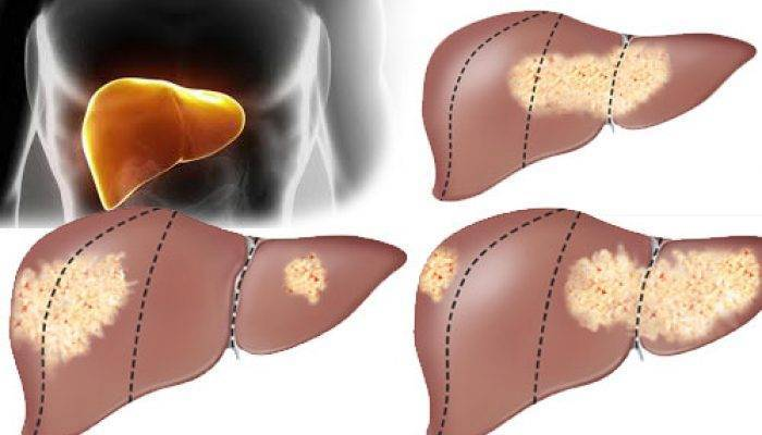 Цирроз печени - это рак или нет? отличия между заболеваниями - всё о склерозе