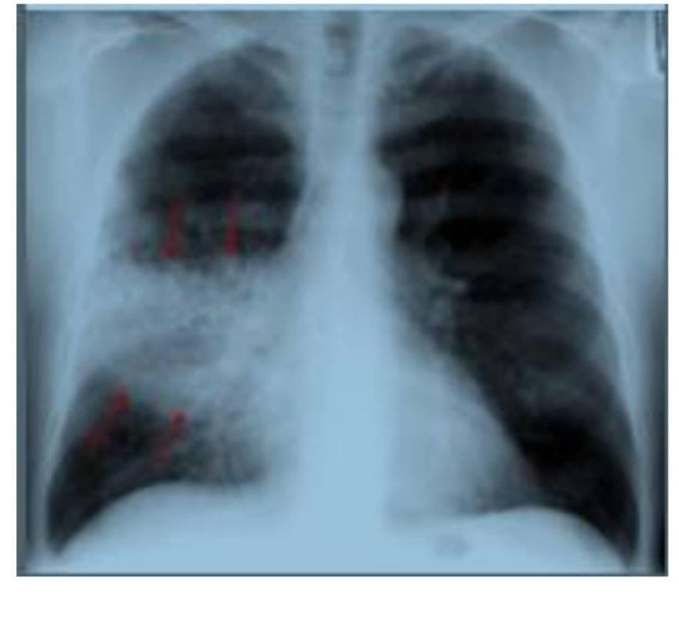 Как делается рентген легких, что он показывает и чем рентген отличается от флюорографии?