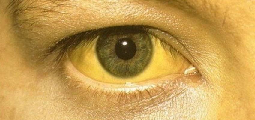 Как быстро желтеют глаза при гепатите: пожелтение склер глаз при заболеваниях печени