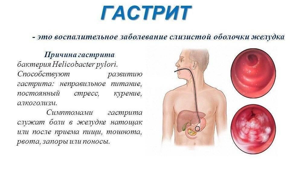 Можно ли курить кальян при гастрите - здоровое тело