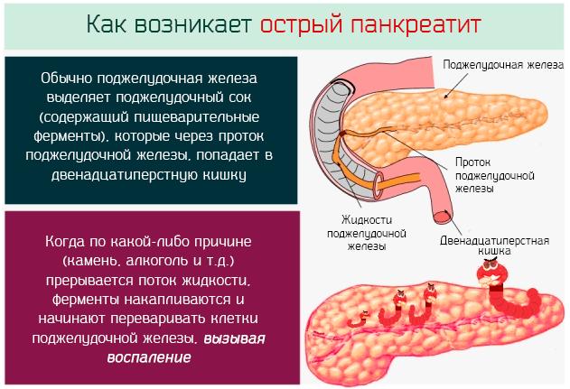 Поджелудочная железа и алкоголь: последствия алкогольного панкреатита. как развивается и лечится алкогольный панкреатит?диагностика и лечение печени и желчного пузыря
