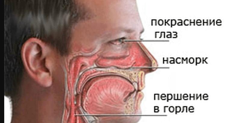 Аллергия на сигареты и табачный дым