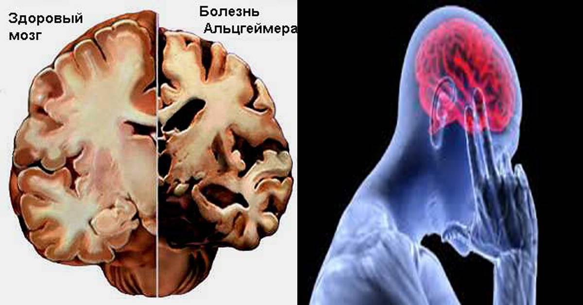 Старческая деменция: причины развития слабоумия, принципы диагностики и лечения