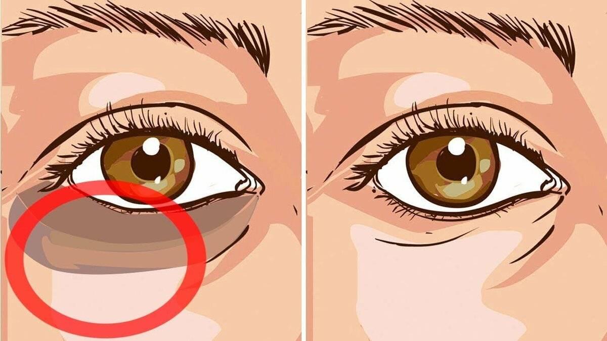 Как снять отек с лица