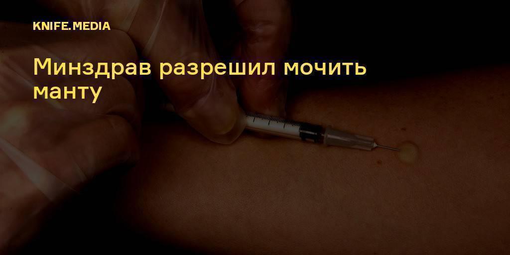 Прививка манту сколько дней нельзя мочить