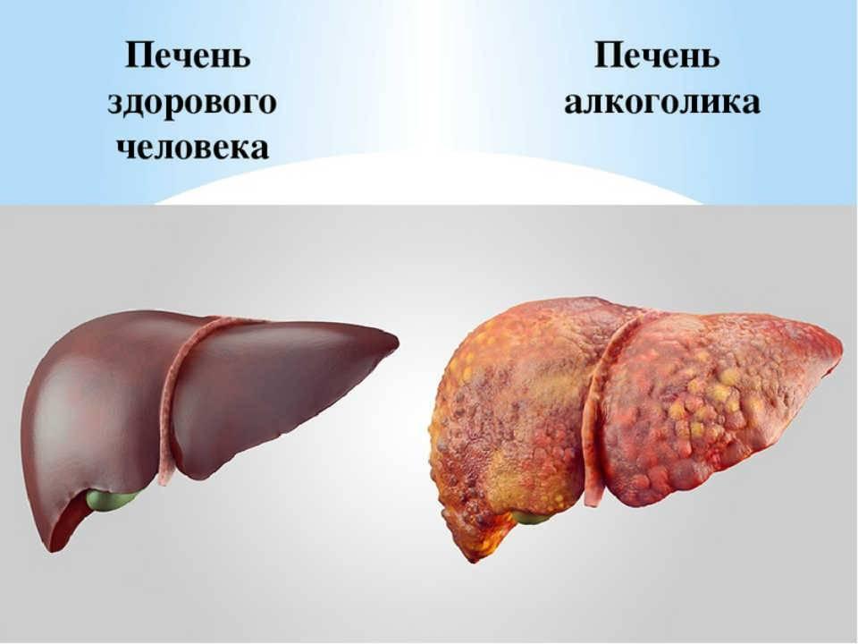 Печень говяжья: состав, калорийность, норма в день, польза и вред
