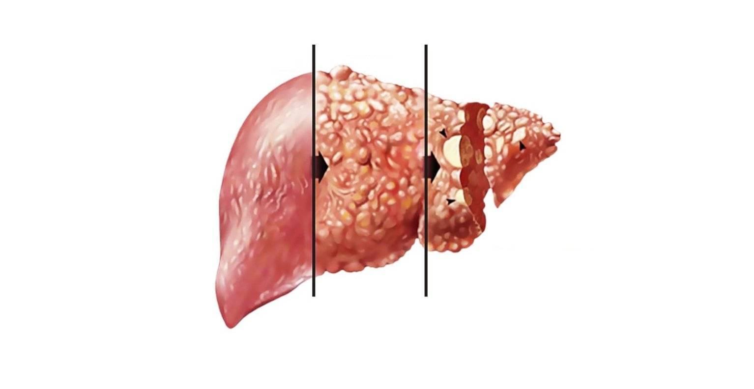 Жировой гепатоз: симптомы, лечение и диета при стеатозе (гепатозе)