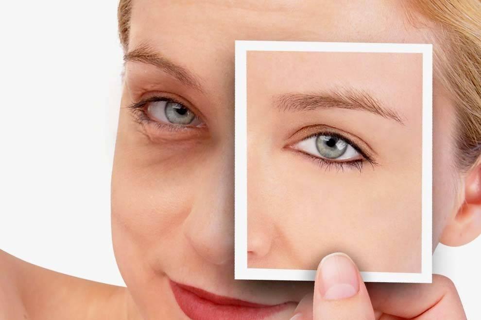 Советы косметолога: как убрать отеки под глазами в домашних условиях быстро