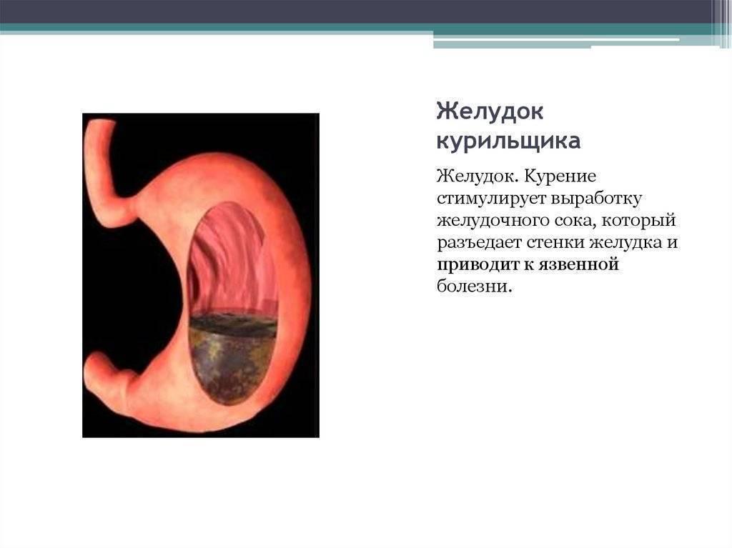 Как курение влияет на желудок