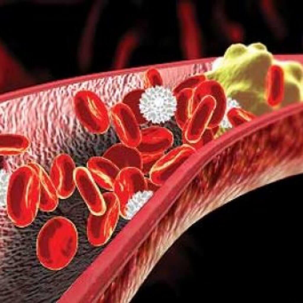 Как влияет холестерин на сосуды - про холестерин
