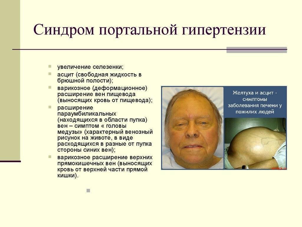 Портальная гипертензия при циррозе печени: симптомы