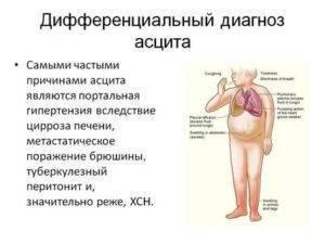Методы определения асцита: симптом флюктуации, перкуссия живота