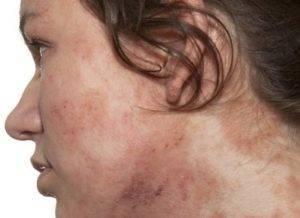 Сыпь на коже от алкоголя фото