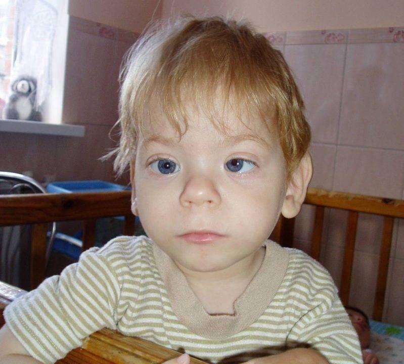 Воспитание детей с алкогольным синдромом