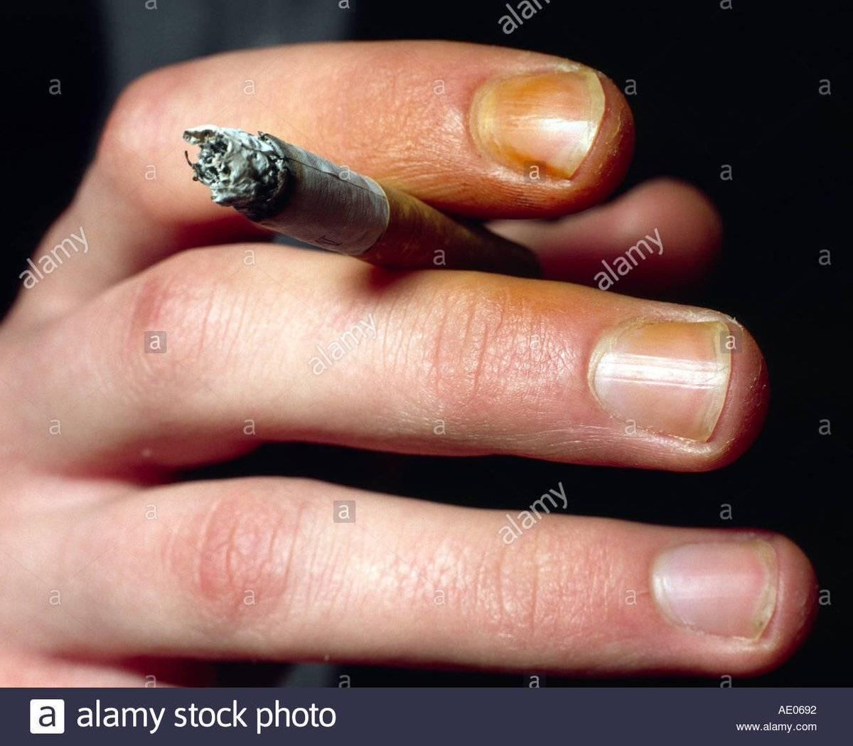 5 действенных способов, как убрать проблему желтых пальцев от сигарет из жизни курильщика