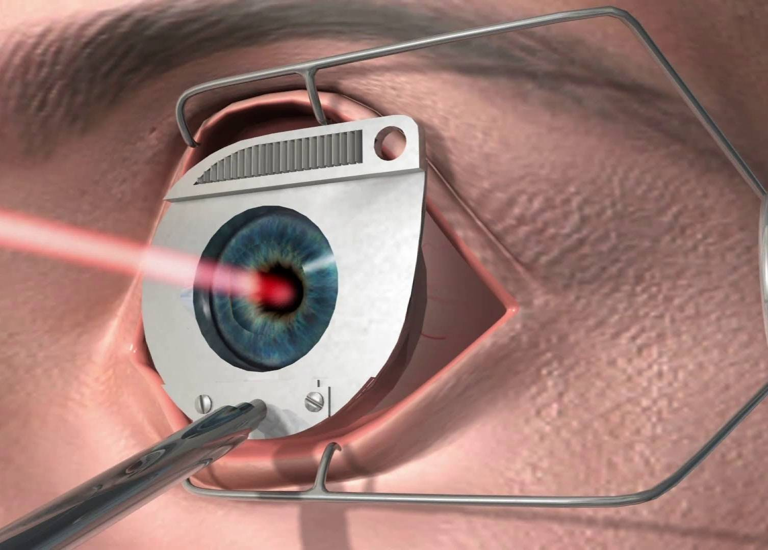 Консультация офтальмолога: противопоказания к лазерной коррекции зрения