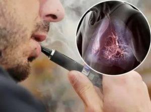 У меня болит сердце после электронной сигареты