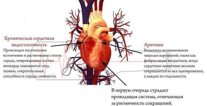 Тахикардия после алкоголя что делать ⋆ лечение сердца