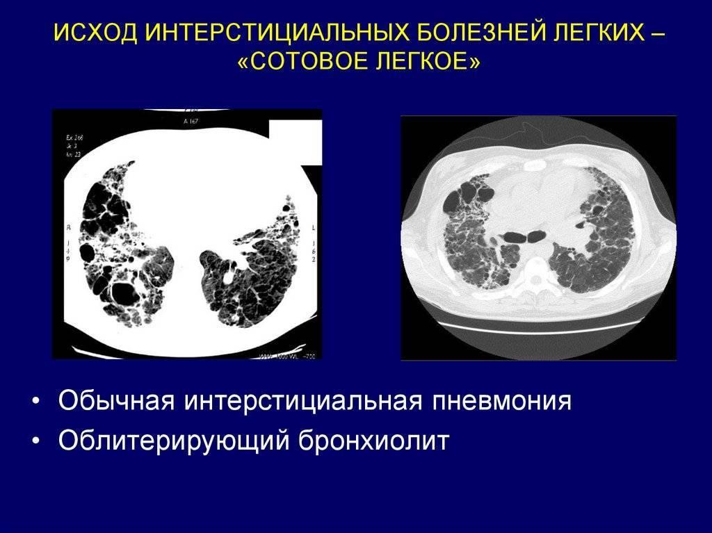 Симптомы рака легких у мужчин и женщин. как проявляется онкология легких и как ее определить?
