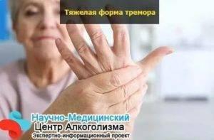 Немеют руки с похмелья что делать