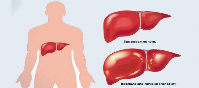 Печеночная недостаточность: диагностика и лечение, стадии и виды,