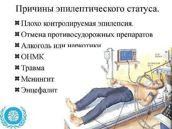 Алкогольная эпилепсия: что это такое, симптомы, причины, лечение, последствия