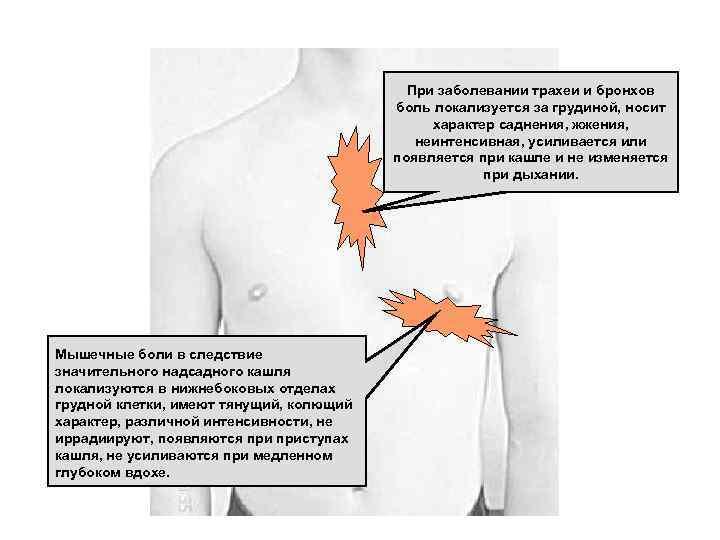 Развитие болезненных ощущений в груди после курения