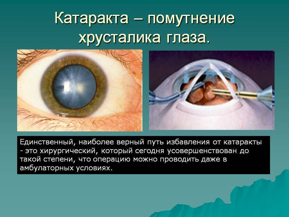 Катаракта – лечение, симптомы, фото