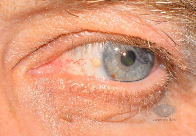 Желтая кожа и глаза: причины. о чем говорят желтые белки глаз
