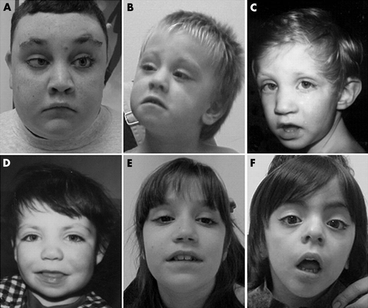 Взрослые дети алкоголиков: признаки, психологические и физические особенности