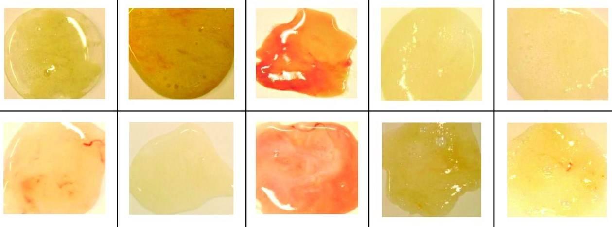 Постоянная мокрота в горле без кашля: причины и лечение